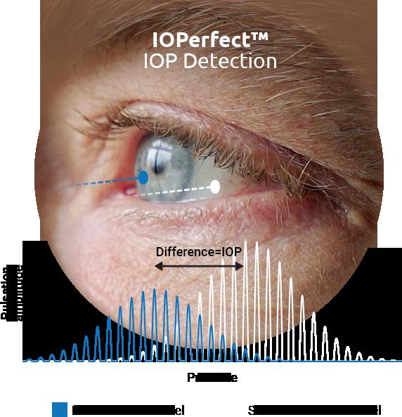 IOP Detection